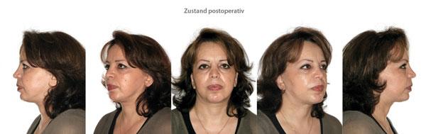 Vorher-Nachher-Bilder Facelift