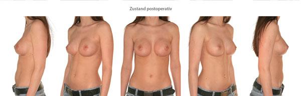 Vorher-Nachher-Bilder Brustvergrößerung