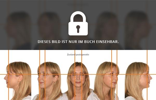 Vorher-Nachher-Bilder Nasenkorrektur
